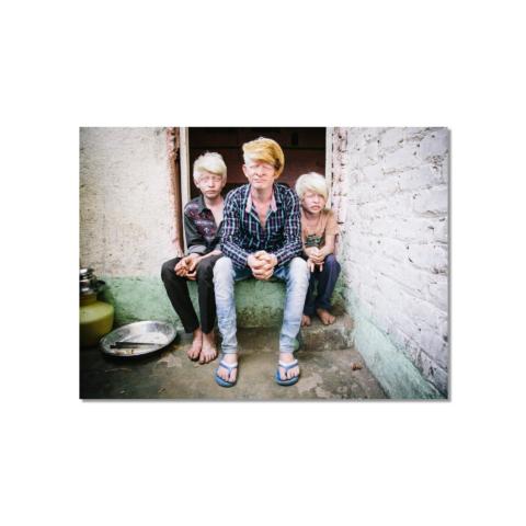 Albino brothers
