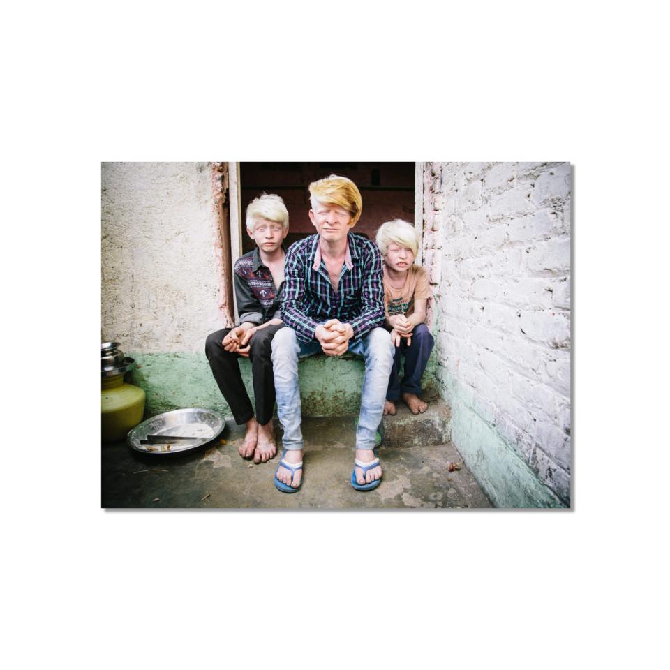 Albino_Brothers_Print